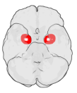 "Courtesy of Washington irving [sic] on Wiki, who adds, ""The figure shows the underside (ventral view) of a semi-transparent human brain, with the front of the brain at the top. The red blobs show the approximate location of the en:amygdala in the en:temporal lobes of the human brain. Note: the amygdala is covered by the ventral temporal cortex (i.e., it is inside the transparent brain ~ Wiki's Washington irving [sic] )."""